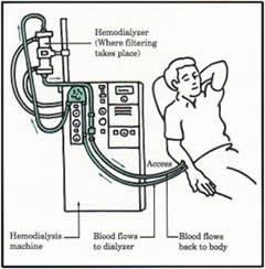 P14T4_Haemodialysis.jpg